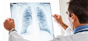 Pulmonary Fibrosis